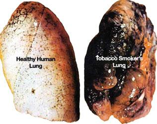 Gesunde und Raucherlunge