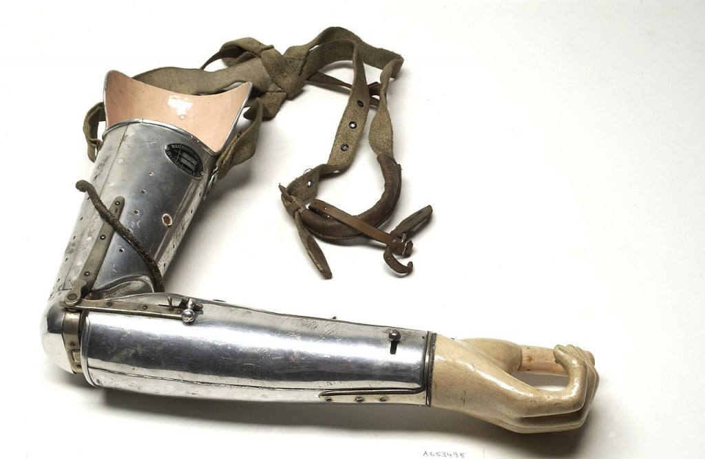 Armprothese