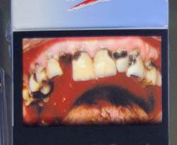 Warnbilder / verfaulte Zähne